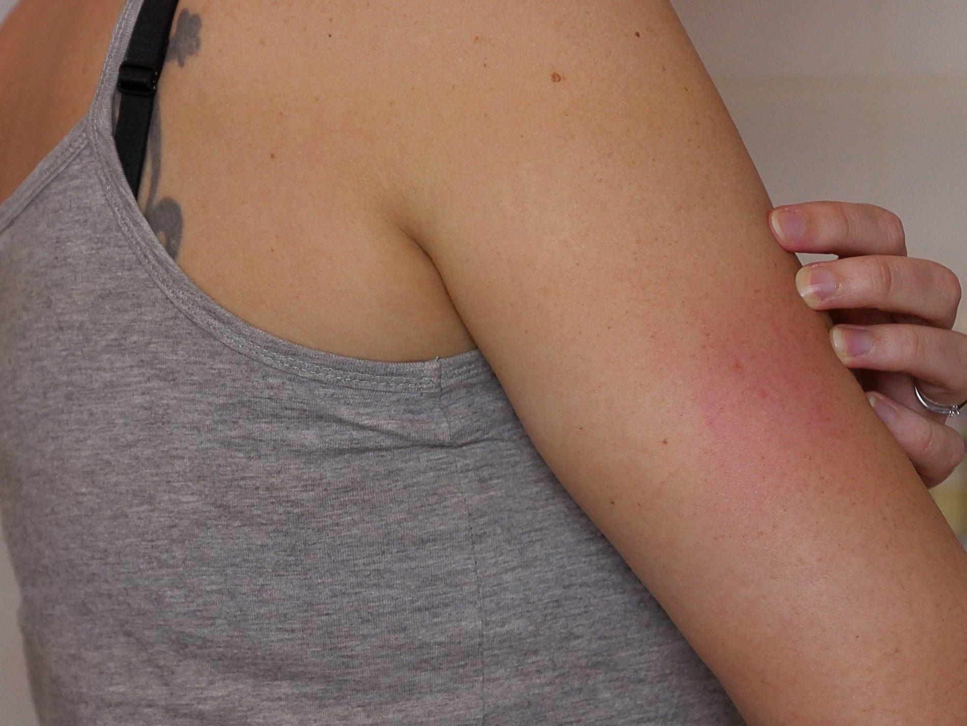 peau déshydratée et rougeur - juliesliberties