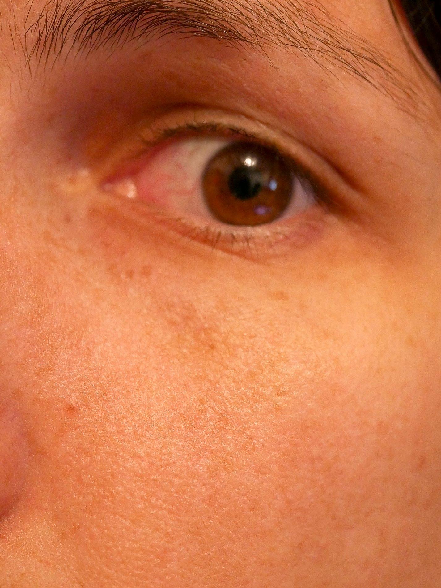 type de peau normal - juliesliberties